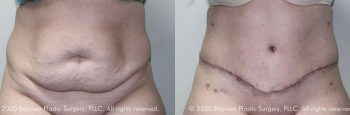 Tummy Tuck Before & After 7