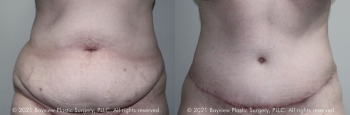Tummy Tuck Before & After 11