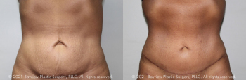 Tummy Tuck Before & After 12