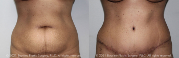 Tummy Tuck Before & After 13