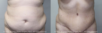 Tummy Tuck Before & After 10