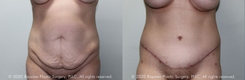 Tummy Tuck Before & After 3