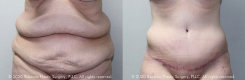 Tummy Tuck Before & After 4