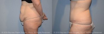Tummy Tuck Before & After 1