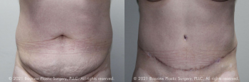 Tummy Tuck Before & After 8