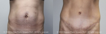 Tummy Tuck Before & After 5