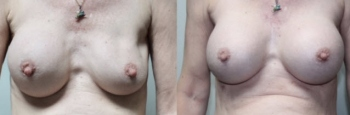 Breast Augmentation Revision 3