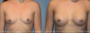 Breast Augmentation Before & After 1