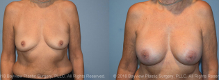Breast Augmentation Before & After 3