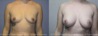 Breast Augmentation Before & After 6