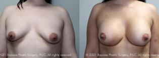 breastaug1_10_4_21