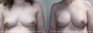 breastaug3_9_9_21