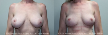 Breast Implant Removal with Mastopexy Before & After