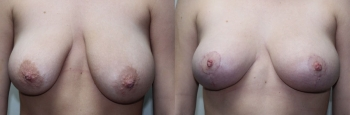 Breast Lift Before & After 7