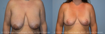 Breast Lift Before & After 3