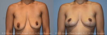 Breast Lift Before & After 4