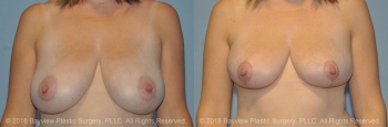 Breast Lift Before & After 5