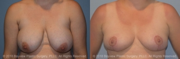 Breast Lift Before & After 6