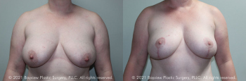 Breast Lift Before & After  10