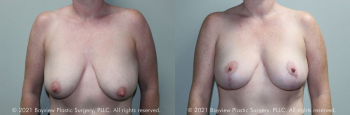 Breast Lift Before & After 11