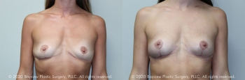 Breast Lift Before & After 8