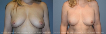 Breast Reconstruction Before & After 3