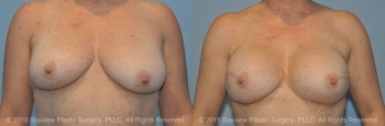 Breast Reconstruction Before & After 4