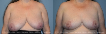 Breast Reconstruction Before & After 1
