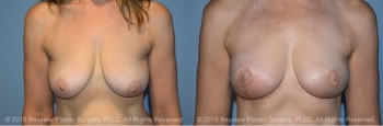 Breast Reconstruction Before & After 2