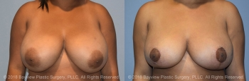 Breast Reduction Before & After 3