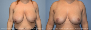 Breast Reduction Before & After 4