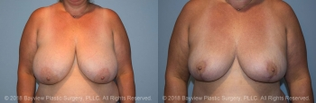 Breast Reduction Before & After 5