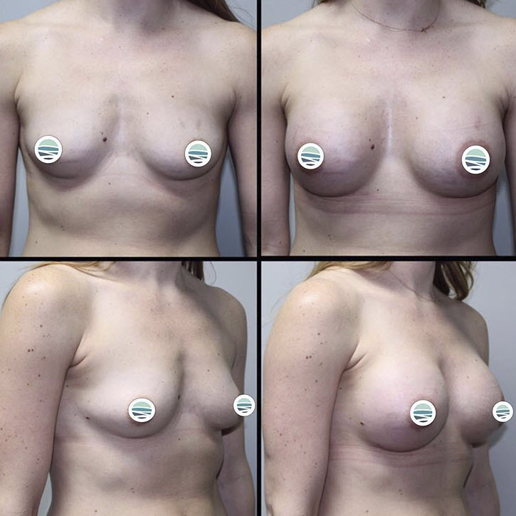 Breast Augmentation Pierce County WA