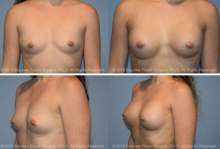 Breast Augmentation in Tacoma Washington